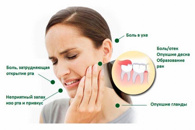 Зуб мудрости болит при надавливании